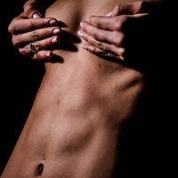 Marcación Abdominal la nueva tendencia en cirugía