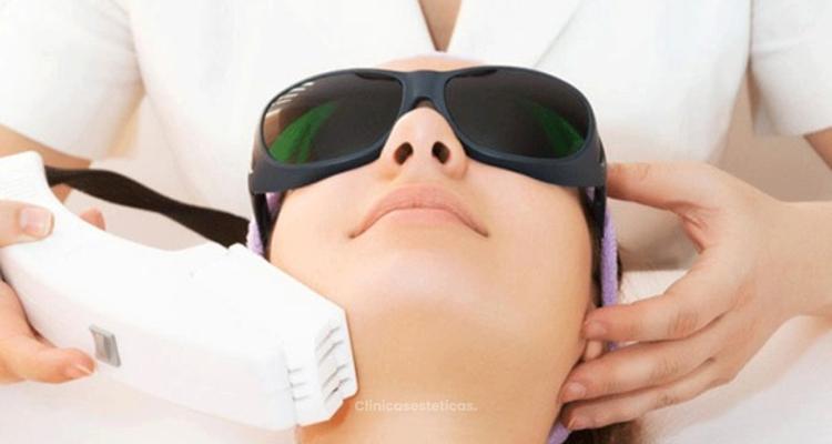 Lo que hay que tener en cuenta antes de la depilación láser