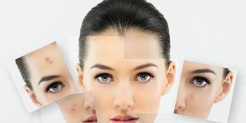 3 Tratamientos eficaces para eliminar el acné y sus cicatrices