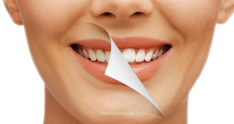 Los tres tipos de blanqueamiento dental más usados en Colombia