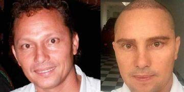 ¿Qué cirugías se hizo Giovanny Ayala?