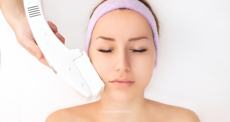 Efectividad de depilación dáser facial