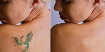 El Magic Pen: Lo último para la eliminación de tatuajes