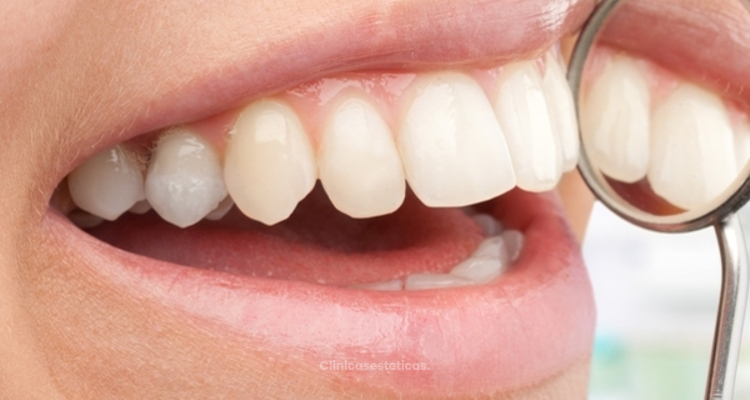 Implantes dentales con elevación de seno maxilar