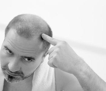 Tatuaje de pelo para simular look de cabeza afectada