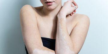Vitiligo ¿qué es y cómo tratarlo?