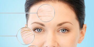 Skin needling: la aguja que mejora nuestra piel