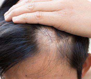 Artículos sobre Implantes de cabello - Clinicasesteticas.com.co be6374e3df46