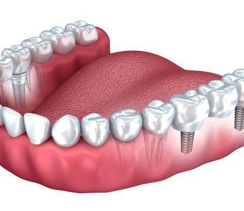 Prótesis dentales: último reto una sonrisa natural