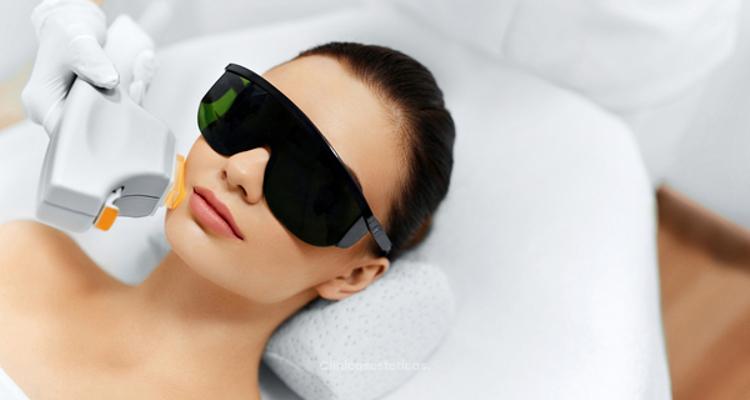 Los tipos de láser facial y sus caractaerísticas