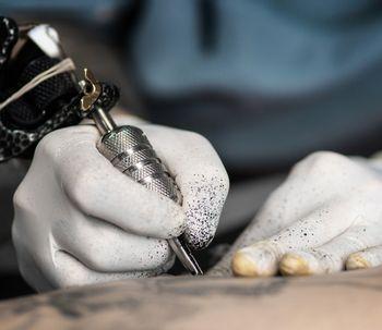 Elimina tatuajes, manchas y micropigmentaciones con el láser Q-Switched N-yag