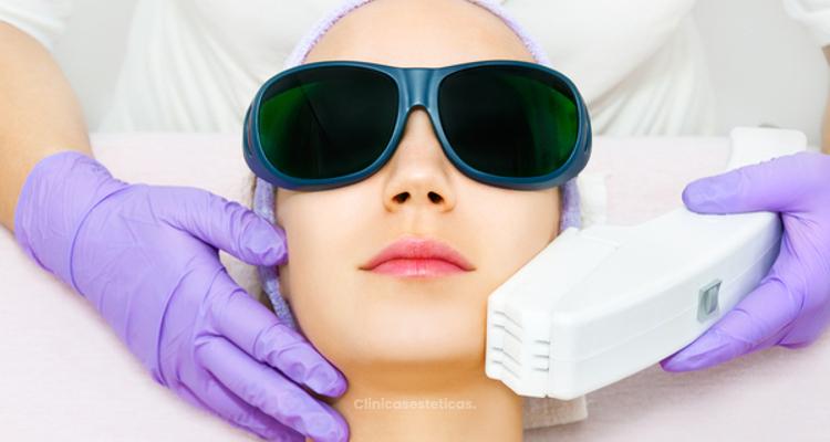 El efecto paradójico de la depilación láser facial
