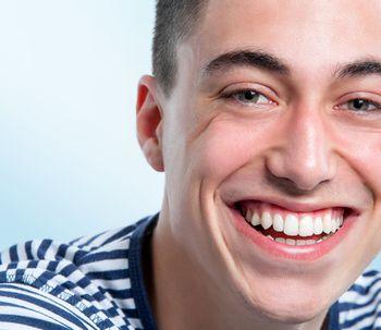 ¿Qué es el diseño de sonrisa?