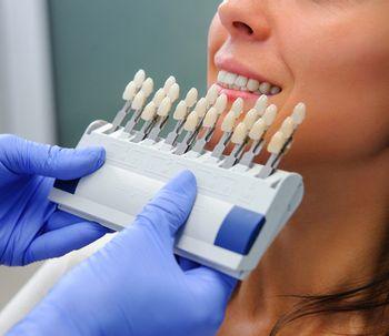 ¿Conoces los implantes de colocación inmediata?