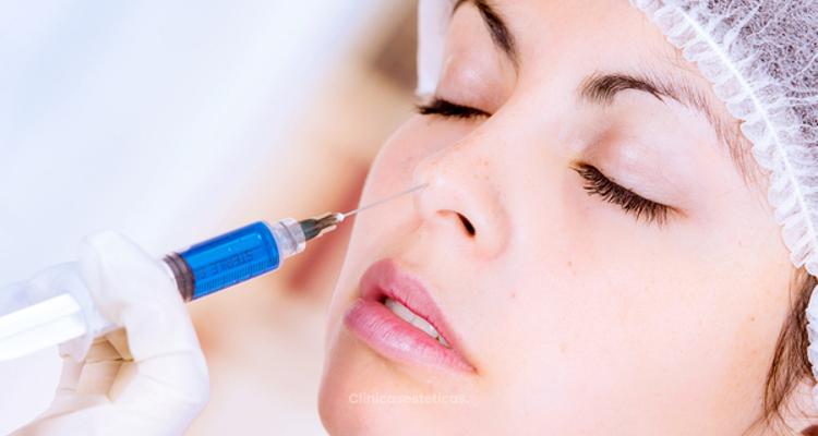 Retócate la nariz con ácido hialurónico