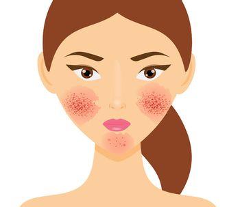 Causas, progreso y tratamientos para la rosácea