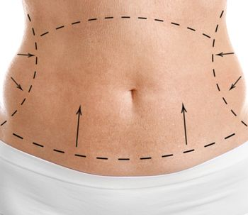 Lo que debe saber sobre las fajas postquirúrgicas