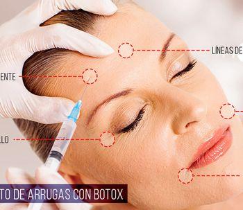 Todo lo que tienes que saber sobre el Botox