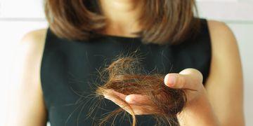 Alopecia: una enfermedad que no distingue género