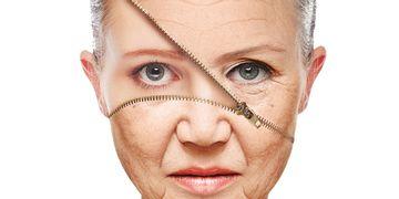 Blanchig: un método eficaz para eliminar las arrugas