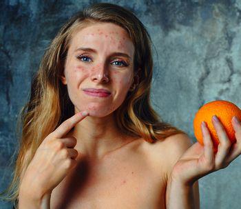 ¿Cómo combatir con la piel seca cuando nos tratamos el acné?