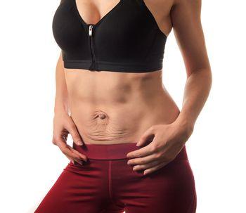 La corrección de diástasis abdominal a través de la abdominoplastia