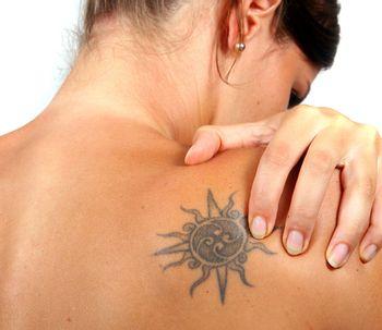Borrar tatuajes: láser y ablación de macrófagos