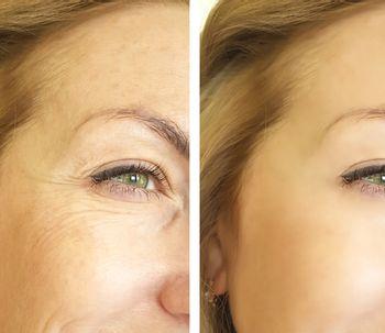 Revitaliza tu piel con el Plasma Rico en Plaquetas