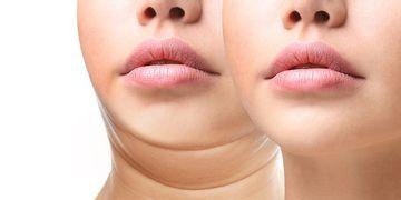 Liposucción de papada ¿Cómo es el postoperatorio?