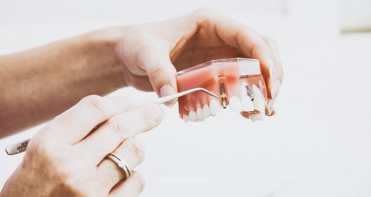 Implantes dentales en Maxilarte