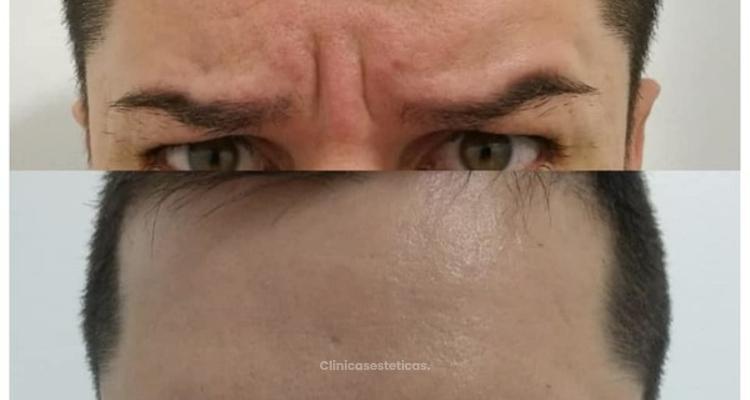 La Magia de la Tóxina Botulínica...(Botox)