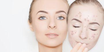 Cómo lucir una piel más joven con láser