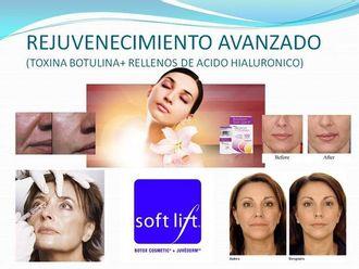 Rejuvenecimiento facial-527664