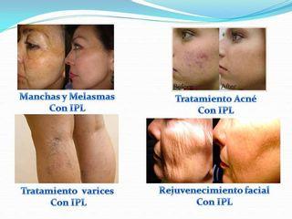 Manchas Acné Varices Rejuvenecimiento Facial