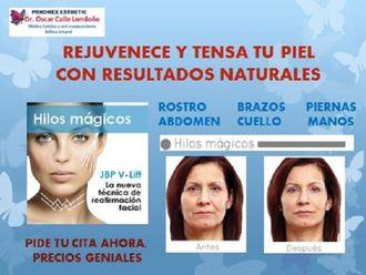 Rejuvenecimiento facial-606845