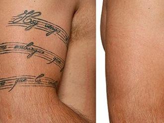 Borrar tatuajes-606848