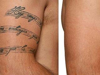 Antes y despues de eliminacion de tatuajes
