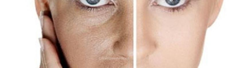 Antes y despues de plasma rico en plaquetas