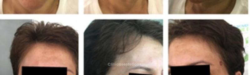 Tratamiento de surcos y arrugas
