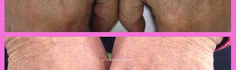 Tratamiento de manchas en manos