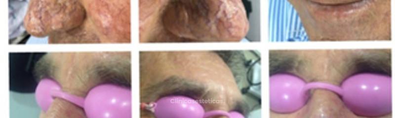 Tratamiento de rinofimia.