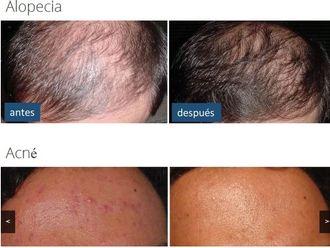Alopecia - 581666