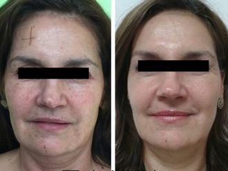 Rejuvenecimiento facial-567575