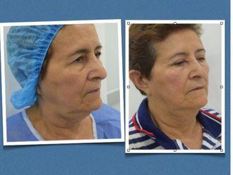 Blefaroplastia-568608