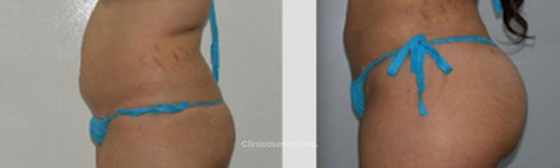 Antes y despues de aumento de gluteos con su propia grasa