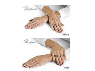 Restylane Vital;  Hidrata y rejuvenece tus manos