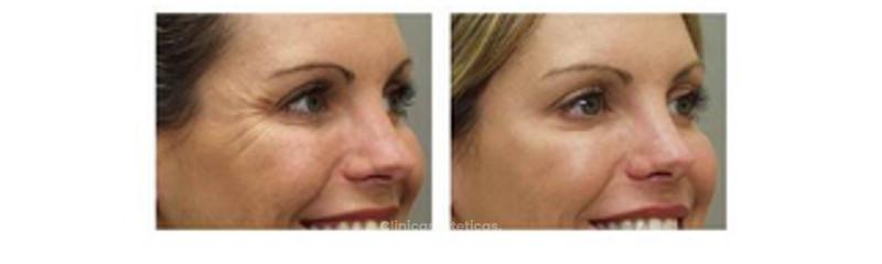 Botox - Dysport