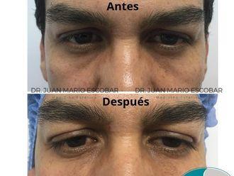 Rejuvenecimiento facial-633261
