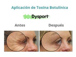 Dysport tratamiento de lineas de expresión.