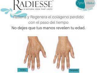 Rejuvenecimiento de manos con Radiesse